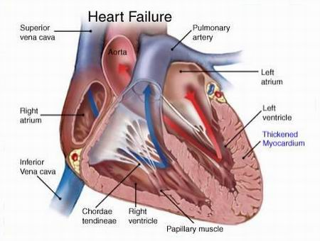Классификация сердечной недостаточности