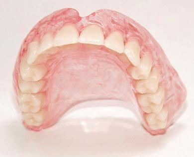 Нейлоновые зубные протезы: показания, виды, цены