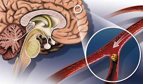 Cклероз сосудов головного мозга