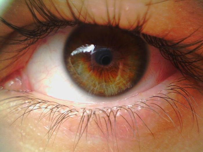 Дистрофия сетчатки глаза — периферическая и пигментная